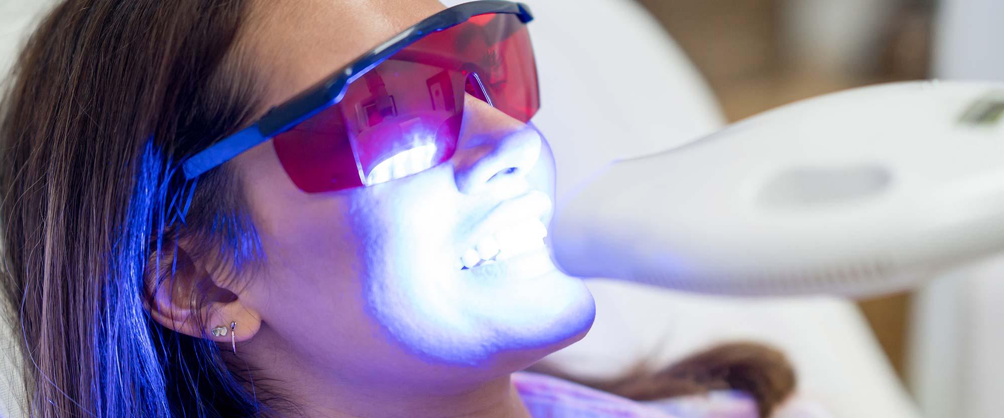 Junge Frau bekommt weiße Zähne mit einem Bleaching aus der Zahnarztpraxis Bertram in Leer