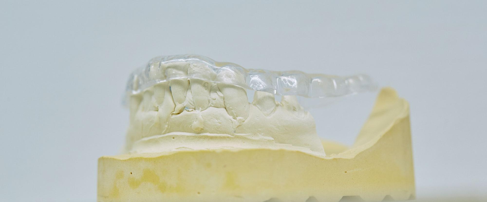 Modell einer nahezu unsichtbaren Zahnschiene