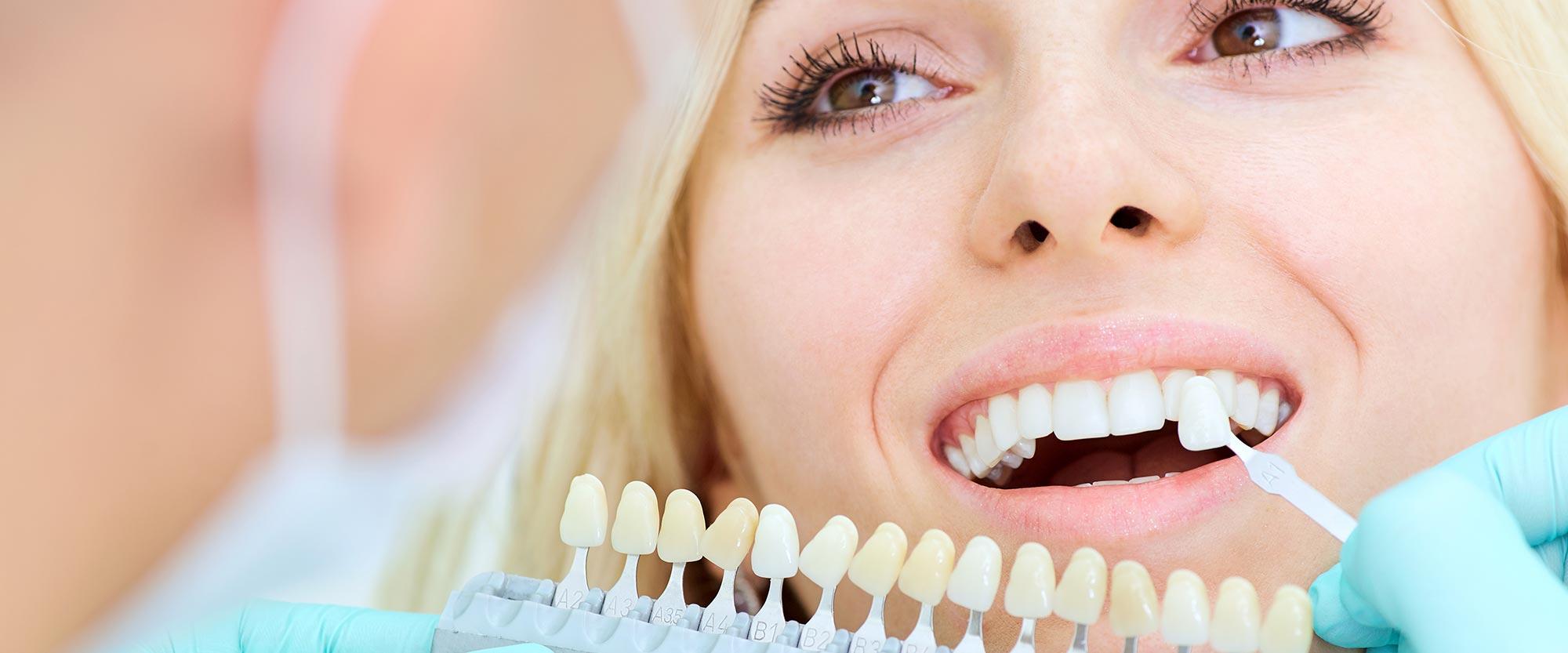 Bestimmung der individuellen Zahnfarbe für Veneers aus Ihrer Zahnarztpraxis in Leer