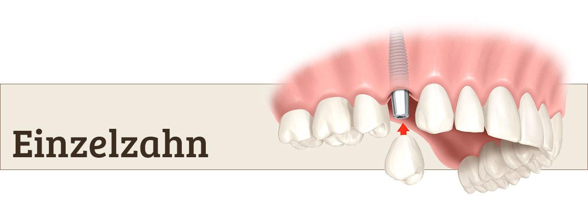 Einzelzahnimplantat aus Ihrer Zahnarztpraxis Bertram in Leer