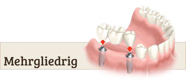 Mehrgliedrige Brücken aus Ihrer Zahnarztpraxis Bertram in Leer.
