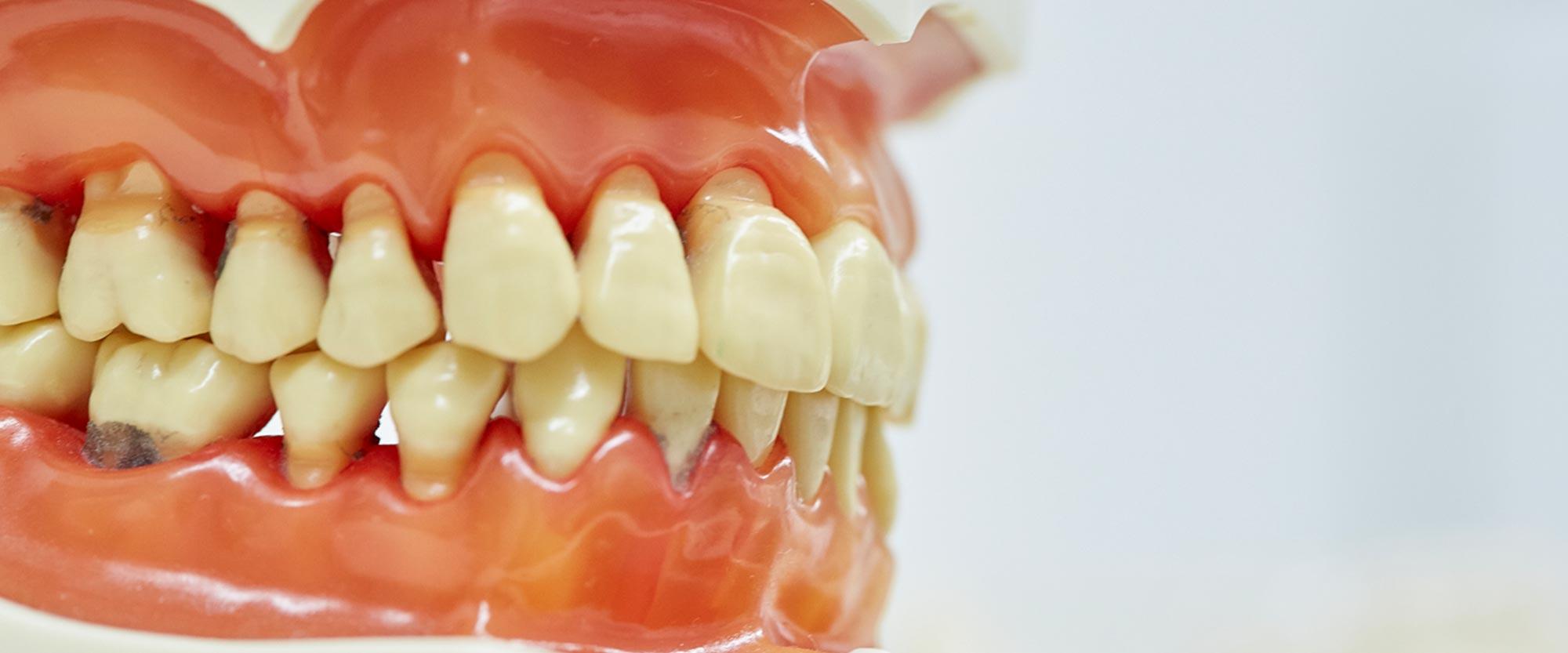 Modell eines Gebisses für die Behandlung von Parodontitis in Leer