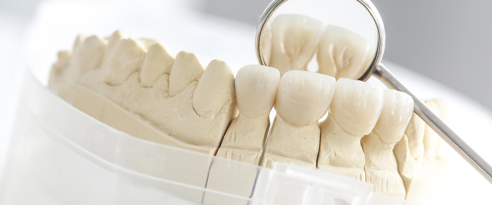 Modell von Zahnersatz aus Keramik aus Ihrer Zahnarztpraxis Bertram in Leer