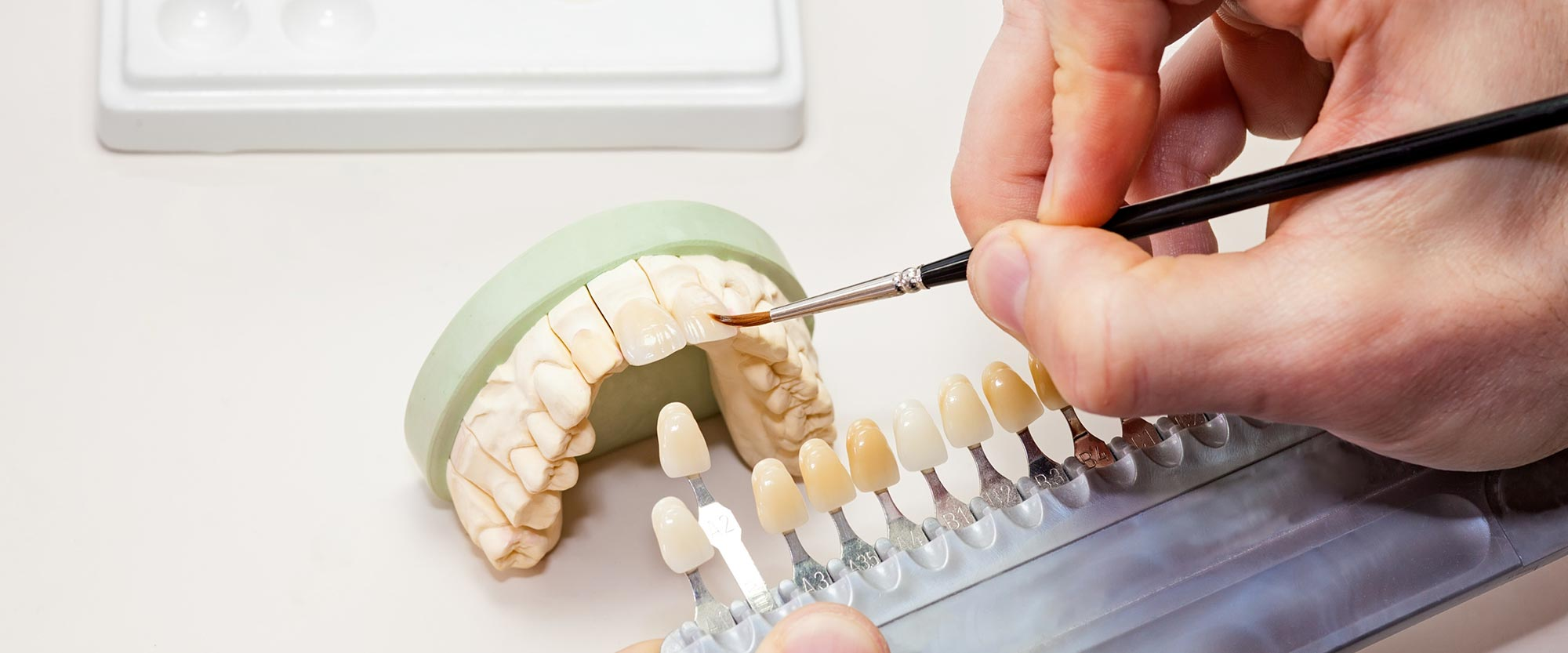 Natürlicher Zahnersatz aus Ihrer Zahnarztpraxis in Leer